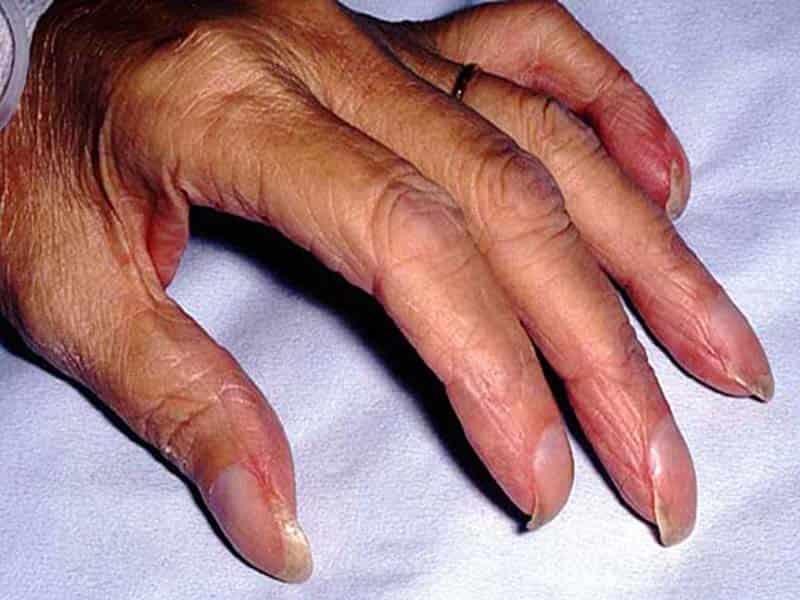 Может ли отрасти палец